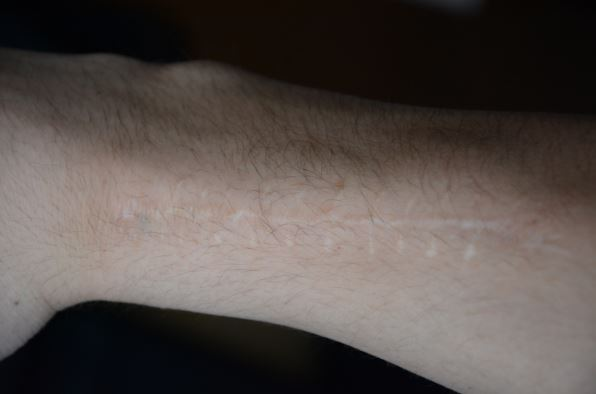 """Senior Christian Koch has a scar that runs along his arm. """"I broke my arm in fifth grade,"""" Koch said. The scar is from a surgery that took place after the bone fracture."""