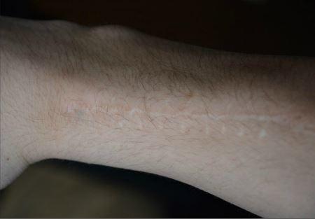 Senior Christian Koch has a scar that runs along his arm.